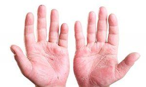 У ребенка шелушится кожа на пальцах рук и ног