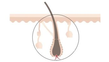 Как избавиться от волос на спине у ребенка?