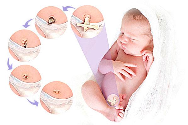 obrabativat-pupok-novorojdennogo-3