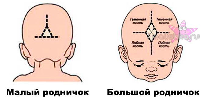 Схема расположения родничка