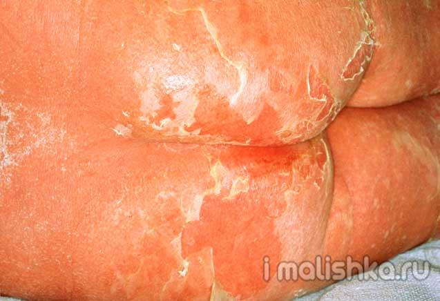 Кандидозный пеленочный дерматит