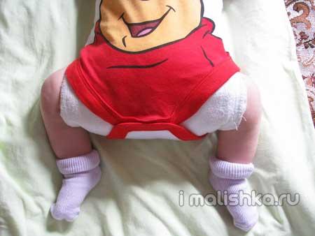 Свободное пеленание ребенка при дисплазии тазобедренных суставов - подушка Фрейка