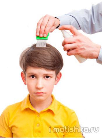 Как вывести вшей у ребенка в дома?