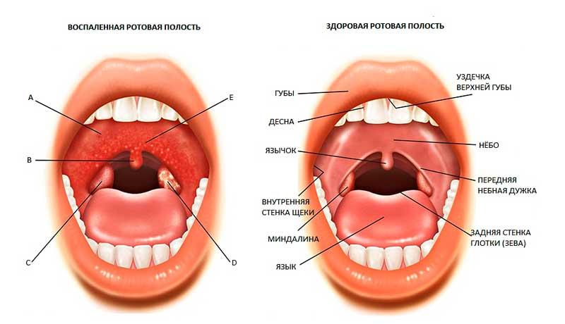 rebenok-skripit-zubami-vo-sne-prorezivatel-5