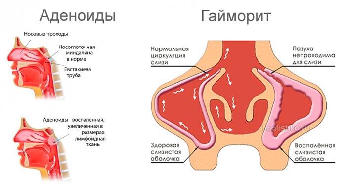 rebenok-spit-s-otkritim-rtom-gaimorit-i-adenoidi