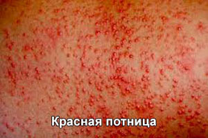 kak-lechit-potnicu-u-novorozhdennyh-3