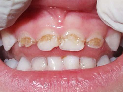 priznaki-prorezyvaniya-zubov-u-grudnichka-6