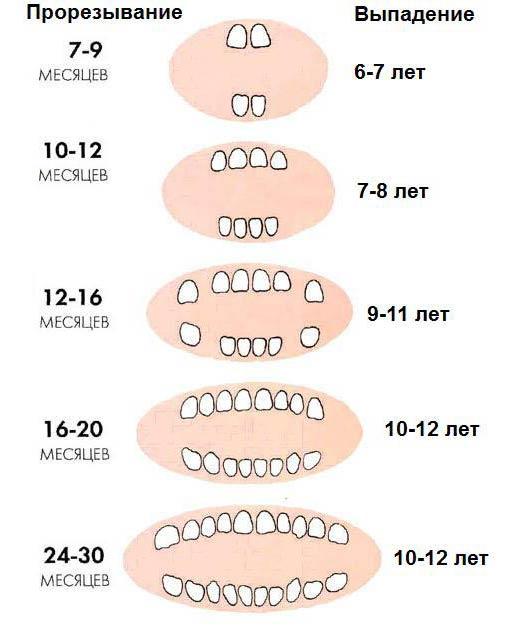 simptomi-kogda-rezhutsya-zuby-u-rebenka-2